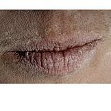 Human lips, Mouth, Dry skin